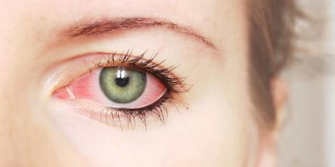 What Is Pink Eye & How Can You Prevent It?, Symmes, Ohio