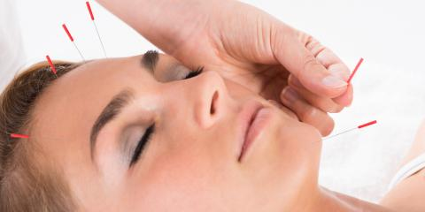 Acupuncture Face Lift:  $50 Off your first session!, West Hartford, Connecticut