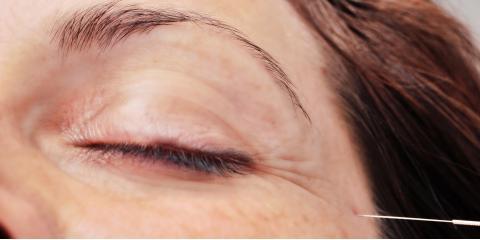 Facial Rejuvenation Package: $895 for 10 treatments, San Rafael, California