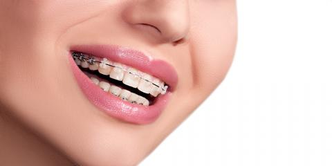 Can Adults Get Braces?, Fairfield, Ohio