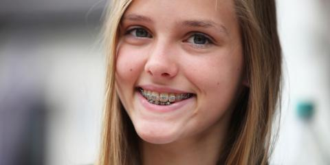 Family Dentist Answers 4 FAQ About Braces, Springfield, Ohio