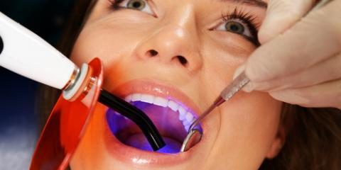 Honolulu Family Dentistry Clinic Highlights 5 Types of Dental Fillings, Honolulu, Hawaii