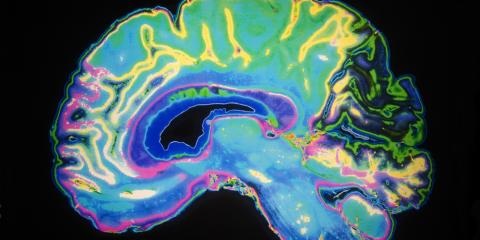 Beyond Eye Diseases, New Exams Can Also Detect Alzheimer's, Bridgeport, Connecticut