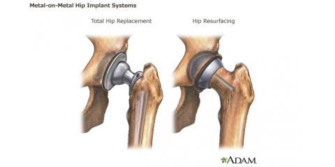 Metal-on-metal hip implants still causing serious problems, Austin, Texas