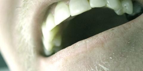Monroe, NY's Top Cosmetic Dentists Explain the Link Between Gum Disease & Heart Health , Monroe, New York