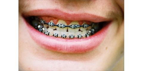 Tips From Your Cosmetic Dentist: 5 Foods to Avoid While Wearing Braces, Monroe, New York