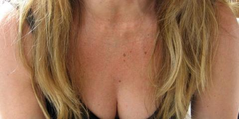 Learn 4 Surprising Facts About Breast Augmentation Surgery From Plastic Surgery Associates of New York, Yonkers, New York