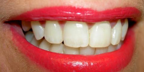 Brighten Your Smile With LaserSmile Tooth Whitening From The Expert Dentists at James F. Hutchens DDS, Stuarts Draft, Virginia