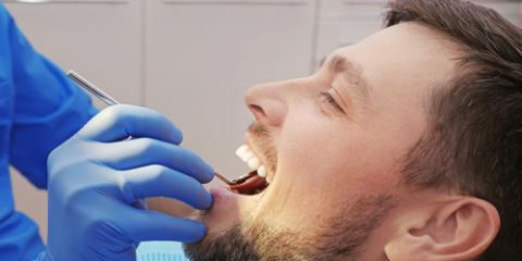 4 FAQ About Fillings Answered , Sacramento, California
