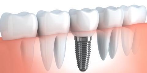 Why VA's Oral Surgery Experts Rely on Nobel Biocare for Dental Implants, Fishersville, Virginia