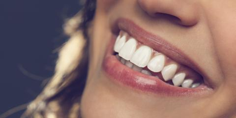 5 Benefits of Cosmetic Dentistry From Fishkill's Top Cosmetic Dentist, Woodbury, New York