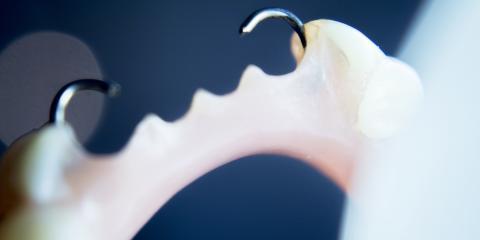 A Guide to Partial Dentures, Columbia Falls, Montana