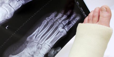How Do You Prepare for Orthopedic Ankle or Foot Surgery?, Delhi, Ohio