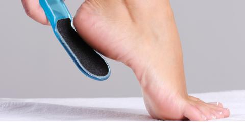 Foot Doctor Shares 5 Treatment Options for Dry, Cracked Heels, Perinton, New York