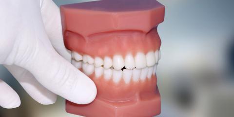Getting dentures