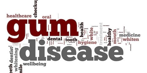 Fort Worth's Leading Dental Clinic Offers Tips on Keeping Gums Healthy, Forest Hill, Texas