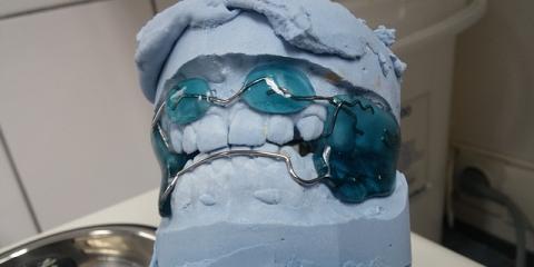 3 Ways Orthodontics Contribute to a Better Smile, Rio Grande City, Texas