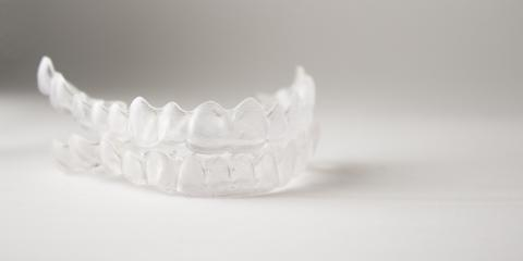 4 Benefits of Invisalign®  From the Cosmetic Dentist, Anchorage, Alaska