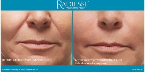 $399 Radiesse Filler Spring Promotion, Sugar Land, Texas