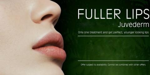 Juvederm Flash Deal! Fuller lips and lines around your mouth, Lake Worth, Florida