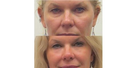 3 Benefits of Tear Trough Cosmetic Fillers, Honolulu, Hawaii