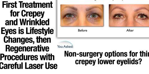 Advanced Laser & Stem-Cell Skin Rejuvenation Treatment