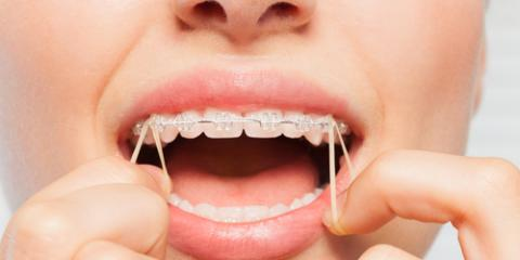 What's the Purpose of Rubber Bands in Braces?, Potomac, Maryland