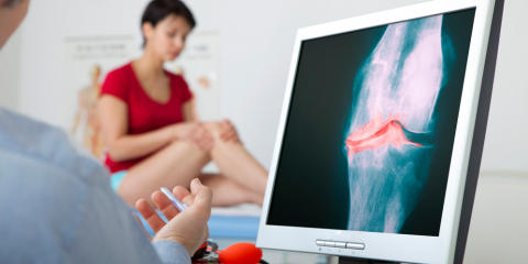 What Are the Stages of Osteoarthritis in the Knee?, Gatesville, Texas