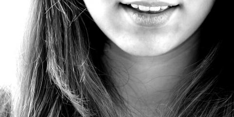 Fairport General Dentistry Office Explains How Nail Biting Can Affect Your Oral Health, Perinton, New York