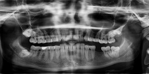 Fairport's General Dentistry Expert Explains What Your Oral X-Rays Show, Perinton, New York