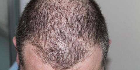 The Top 5 Hair Loss Solutions for Balding , Fairfield, Ohio