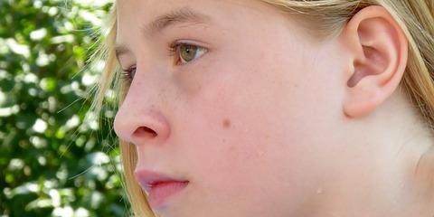3 Health Benefits of Mole Removal From Gateway Dermatology PC, Lincoln, Nebraska