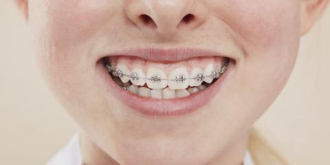 Fairfield's Best Orthodontist Explains How to Care for Your Braces, Fairfield, Ohio