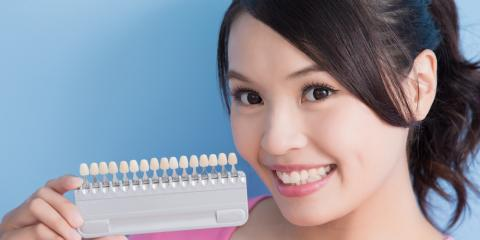 3 Reasons to Choose Professional Teeth Whitening Over At-Home Kits, Greenbrier, Arkansas