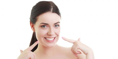 How Can You Extend the Lifespan of Veneers?, Greenwood Village, Colorado