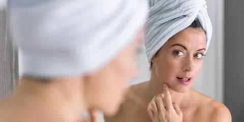 What Causes Wrinkles?, Greenwood Village, Colorado