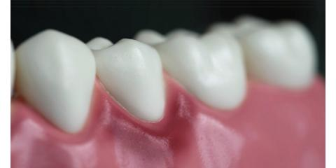 Receding Gums: Treatment Options And Causes, North Branch, Minnesota