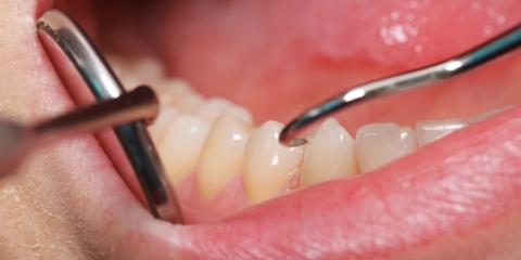 Frequently Asked Questions About Periodontal Treatment, Kingman, Arizona