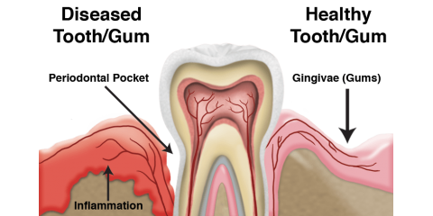 All you have to know about gum disease!, Manhattan, New York