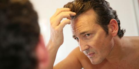Dealing With Hair Loss? Consider These 3 Benefits of Hair Replacement Therapy, Beachwood, Ohio