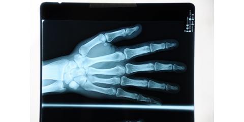 Considering Trigger Finger Surgery? Check Out These Testimonials From Nebraska Hand & Shoulder Institute, Omaha, Nebraska