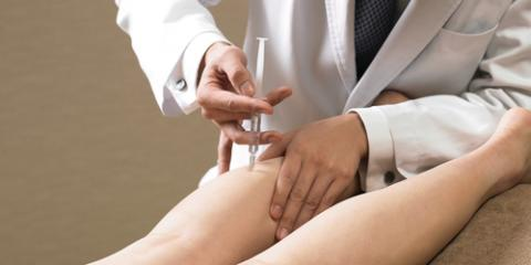 4 Common Questions Patients Ask About Sclerotherapy, Weatogue, Connecticut
