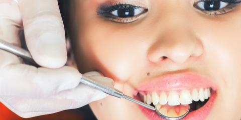 Teeth Whitening: DIY Vs. Professional Treatments, Springdale, Ohio