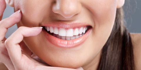 Dentist Explains What Causes Teeth Staining, Honolulu, Hawaii