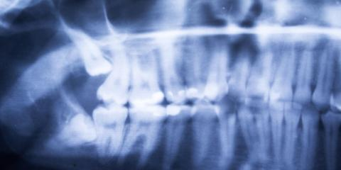 What Are the Causes of an Impacted Tooth?, High Point, North Carolina