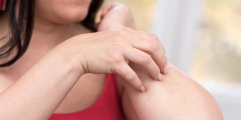 4 Tips for Finding & Using the Right Moisturizer for Psoriasis, High Point, North Carolina