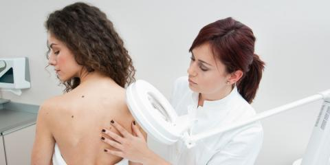 What Does Skin Cancer Look Like?, High Point, North Carolina