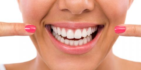 4 Popular Cosmetic Dentistry Treatments , Ripon, Wisconsin