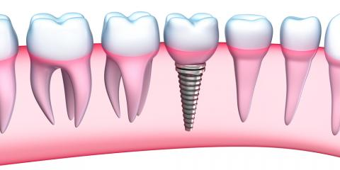 Kahului Dentists Explain Why Dental Implants Are the Perfect Tooth Replacement Solution, Kahului, Hawaii