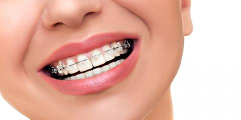 Braces or Invisalign®: Which Treatment Is Best for Your Teeth?, Honolulu, Hawaii